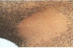 barba-a-chiazze